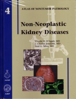 Non-Neoplastic Kidney Diseases