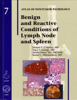 Benign and Reactive Conditions of the Lymph Node and Spleen
