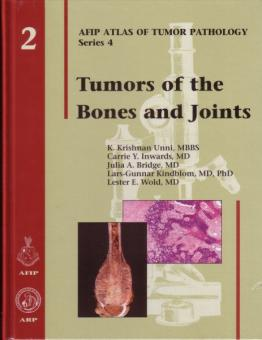 Tumors of the Bones and Joints