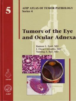 Tumors of the Eye and Ocular Adnexa