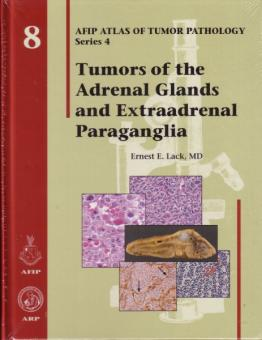 Tumors of the Adrenal Glands and Extraadrenal Paraganglia