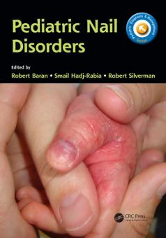 Pediatric Nail Disorders