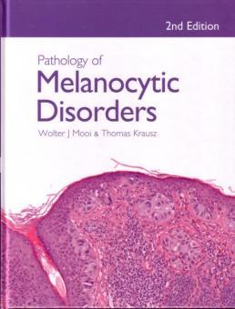 Pathology of Melanocytic Disorders