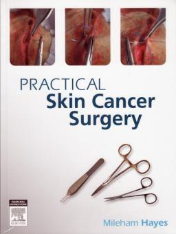 Practical Skin Cancer Surgery