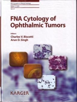 FNA Cytology of Ophthalmic Tumors