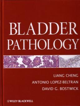 Bladder Pathology