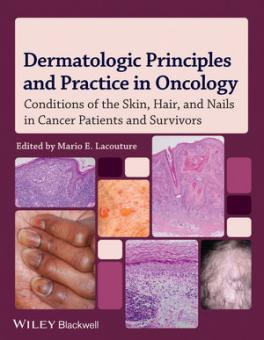 Dermatology and the Cancer Patient