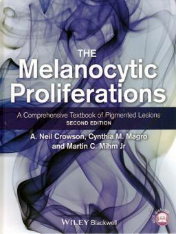 The Melanocytic Proliferations