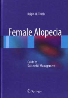 Female Alopecia