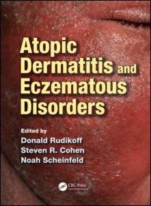 Atopic Dermatitis and Eczematous Disorders