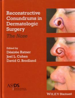 Reconstructive Conundrums in Dermatology