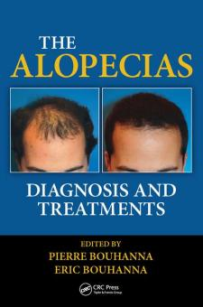 The Alopecias