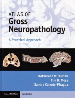 Atlas of Gross Neuropathology