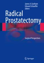 Radical Prostatectomy