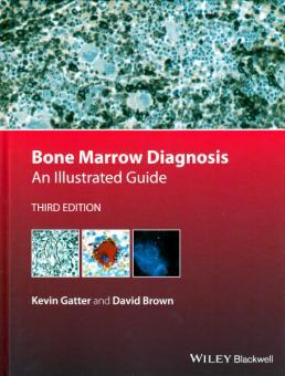 Bone Marrow Diagnosis