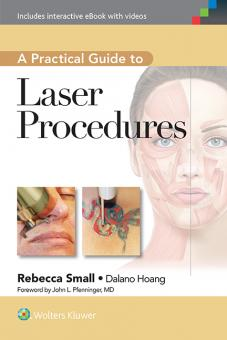 A Practical Guide to Laser Procedures