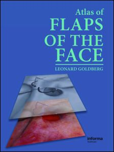 Atlas of Flaps of the Face