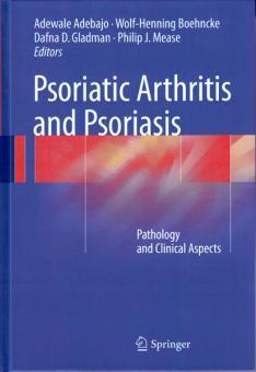 Psoriatic Arthritis and Psoriasis