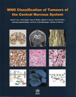 WHO Classification of Tumours of the Central Nervous System, 4th Ed.