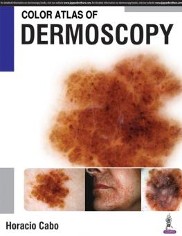 Color Atlas of Dermoscopy