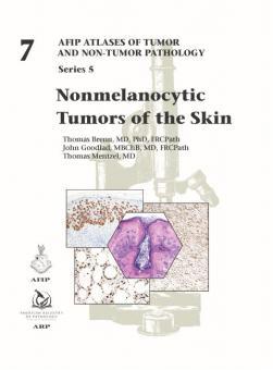 Nonmelanocytic Tumors of the Skin