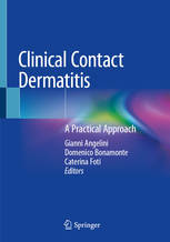 Clinical Contact Dermatitis