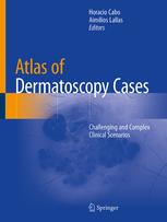 Atlas of Dermatoscopy Cases