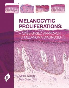 Melanocytic Proliferations